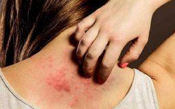 Bệnh mề đay cấp: Nguyên nhân, triệu chứng, cách điều trị hiệu quả