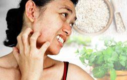 Top 10+ cách trị ngứa da mặt tại nhà hiệu quả, an toàn, dễ áp dụng
