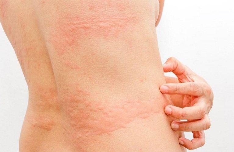 Mề đay gây ngứa ngáy khó chịu cho người bệnh