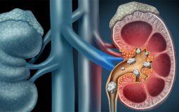 Dùng thuốc sỏi thận phù hợp để điều trị bệnh hiệu quả