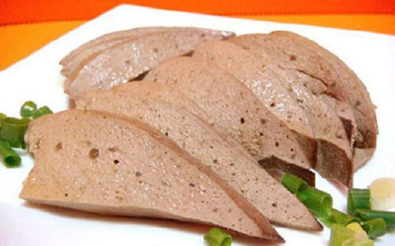 Thực phẩm chứa purin là nguyên nhân gây ra bệnh sỏi thận