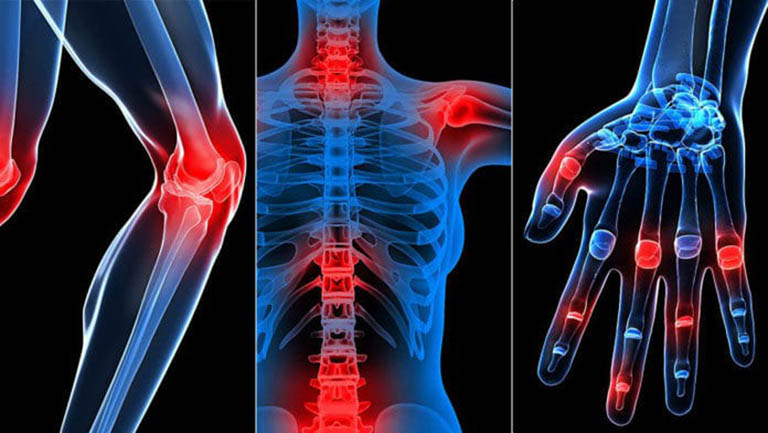 Thoái hóa khớp - bệnh lý xương khớp nguy hiểm
