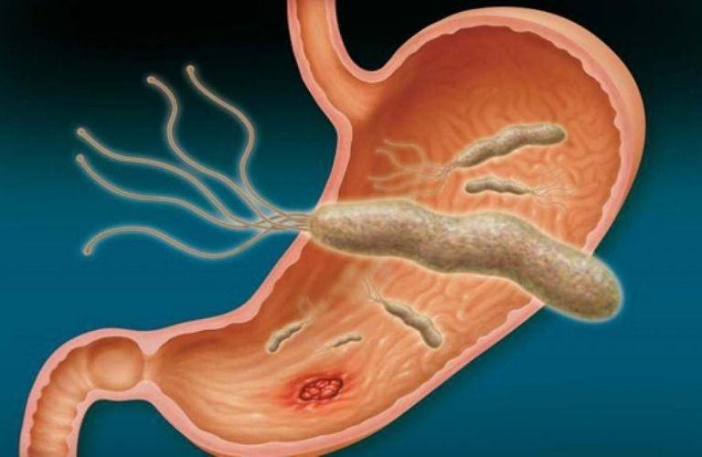 Mô phòng cấu trúc vi khuẩn HP dạ dày