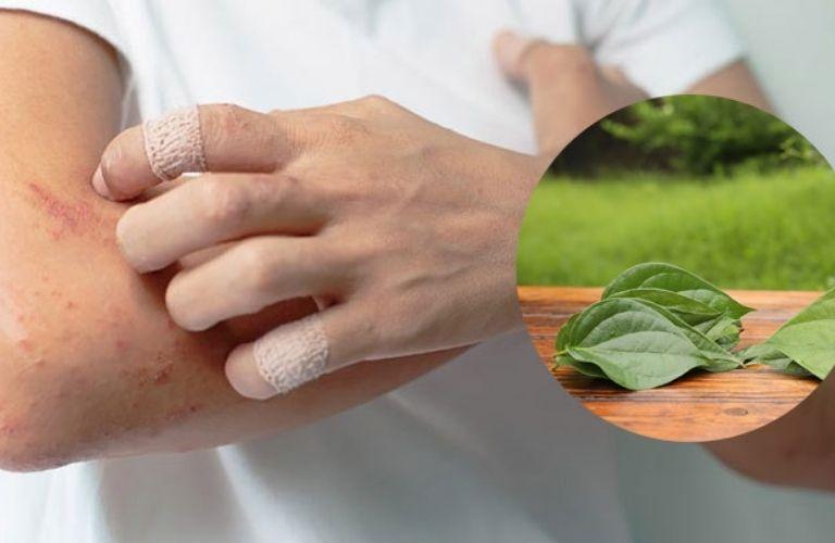 Chữa viêm da bằng lá trầu không có thể áp dụng đối với cả người lớn và trẻ nhỏ