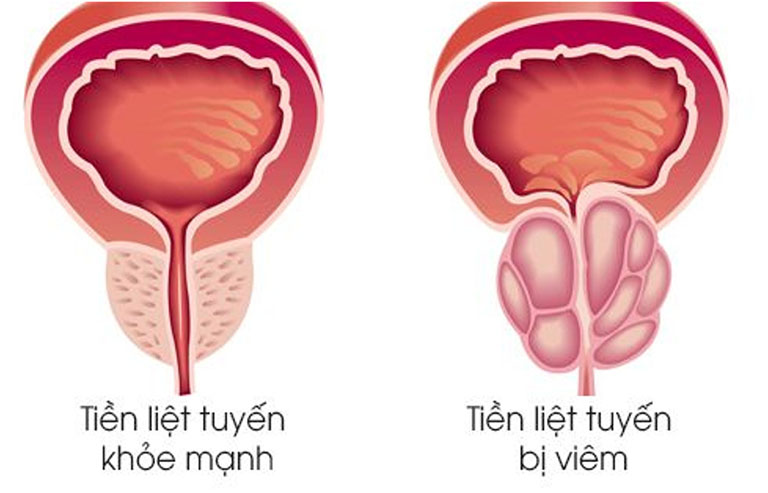 Hình ảnh mô phỏng tình trạng viêm của tuyến tiền liệt