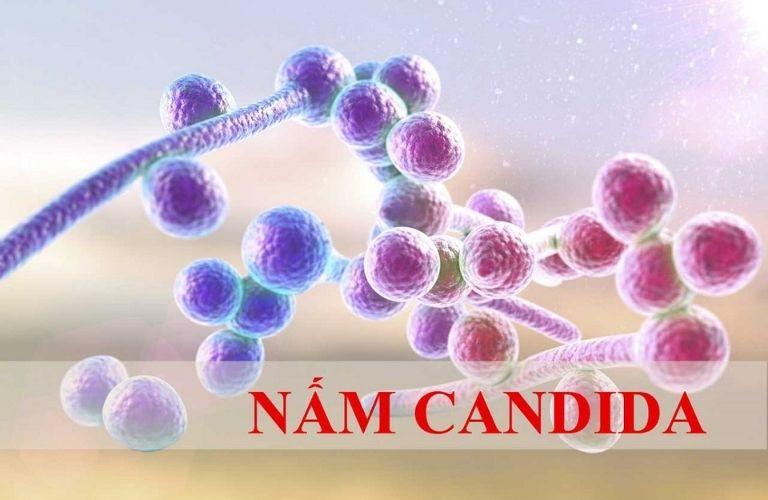 Nhiễm nấm Candida là một trong những nguyên nhân hàng đầu gây nên hiện tượng huyết trắng ra nhiều