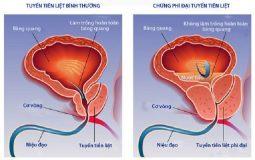 Phì đại tuyến tiền liệt: Nguyên nhân, triệu chứng & cách điều trị