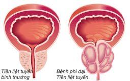 Tăng sản tuyến tiền liệt: Phương pháp chẩn đoán & Điều trị hiệu quả