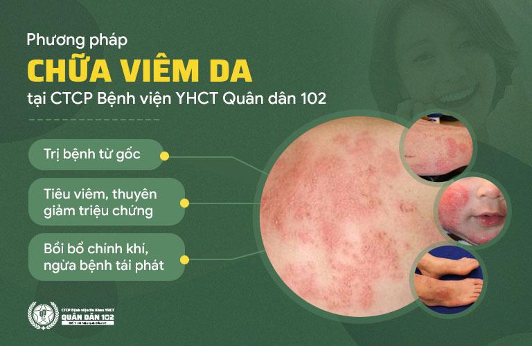Phương pháp chữa viêm da tại Quân dân 102 sở hữu nhiều ưu điểm vượt trội