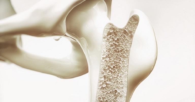 Thiếu hụt canxi nếu không được điều trị tốt có thể dẫn tới loãng xương