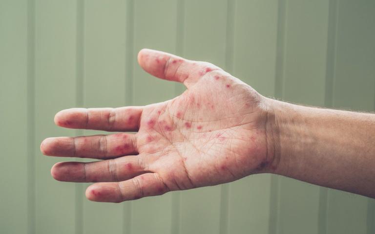 Các bệnh lý viêm da rất khó chữa khỏi hoàn toàn