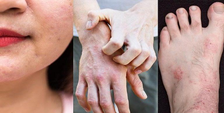 Viêm da dị ứng là căn bệnh dai dẳng, mãn tính, dễ tái phát nếu không được điều trị dứt điểm, đúng cách