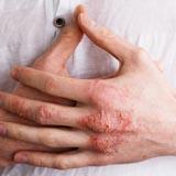 Liệu trình điều trị Viêm da