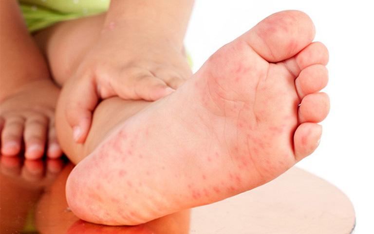 Mụn tổ đỉa ở bàn chân ảnh hưởng nhiều tới khả năng di chuyển của người bệnh