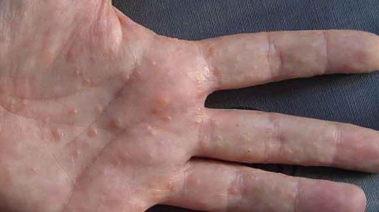 Có nhiều nguyên nhân tổ đỉa, chủ yếu liên quan đến tính nhạy cảm của da