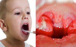 Cách chữa viêm họng mủ trắng: 3 phương pháp hiệu quả nhất hiện nay