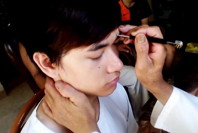 Diển chẩn là phương pháp điều trị do chính người Việt sáng tạo