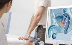 Chữa viêm tuyến tiền liệt mãn tính: 3 phương pháp an toàn và hiệu quả nhất