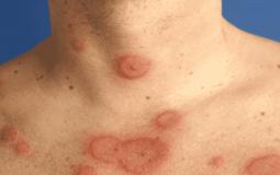 Viêm da tiếp xúc cần kiêng gì, nên làm gì để khỏi hoàn toàn?
