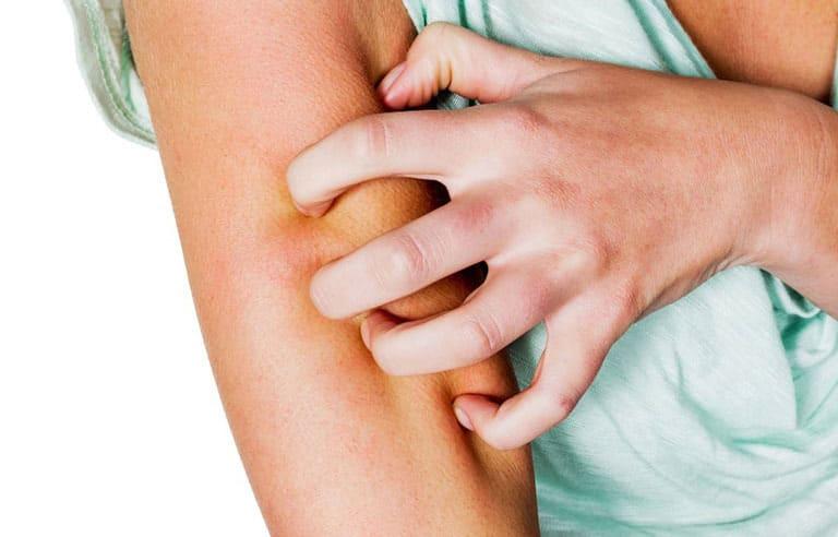 Khi bị ngứa người bệnh không nên dùng tay gãi sẽ khiến vùng da viêm tổn thương sâu, khó điều trị