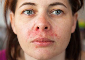 Viêm da tiết bã là tình trạng xuất hiện các mảng da khô, ửng đỏ, ngứa ngáy và bong tróc vảy
