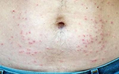 Viêm da tụ cầu là bệnh gì? Triệu chứng, chẩn đoán và điều trị