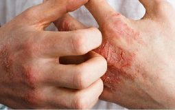 Viêm khớp vảy nến: Nguyên nhân, triệu chứng và cách điều trị