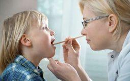 5 biến chứng sau cắt amidan và giải pháp phòng tránh
