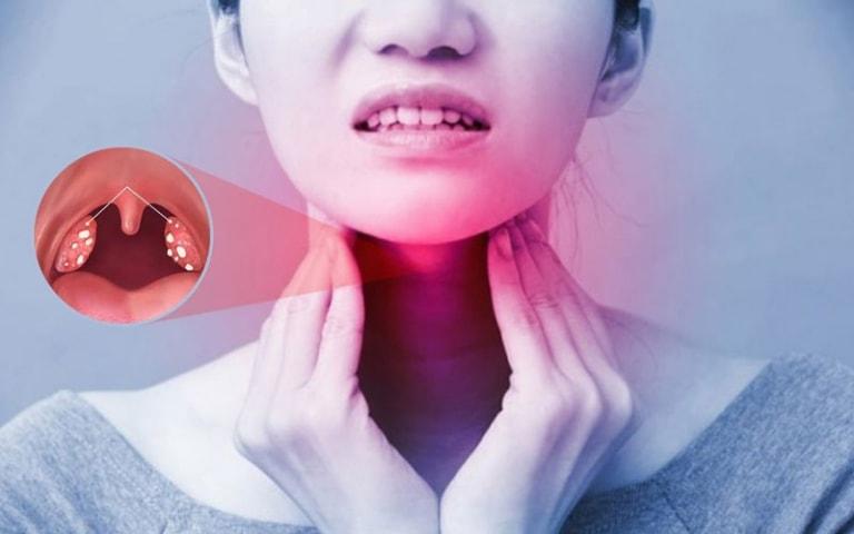 3 biến chứng viêm amidan cực nguy hiểm tuyệt đối không chủ quan