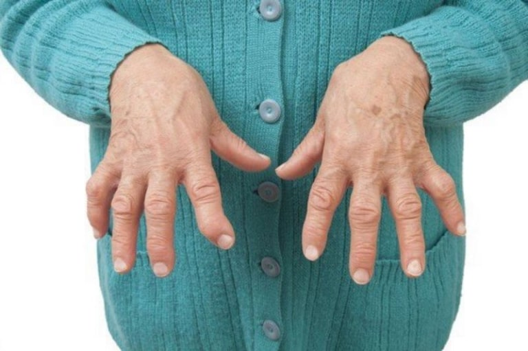 Các dấu hiệu nhận biết bệnh viêm khớp ngón tay như đau, sưng, cứng khớp, nóng đỏ da, biến dạng khớp