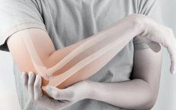 3 biện pháp điều trị đau khớp khuỷu tay hiệu quả, an toàn nhất