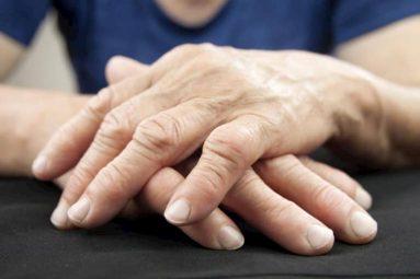 Sưng khớp ngón tay cảnh báo vấn đề gì? Biện pháp xử lý hiệu quả nhất