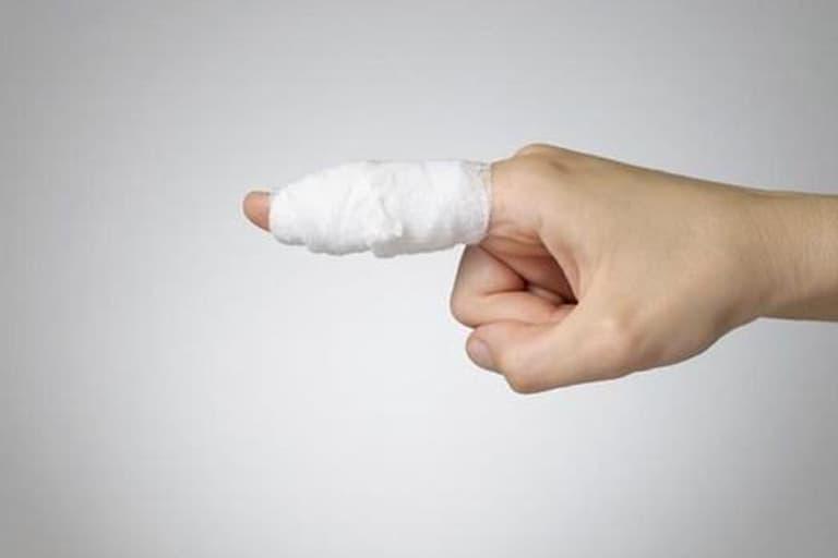 Khớp bị tổn thương dễ dẫn đến hiện tượng sưng đau