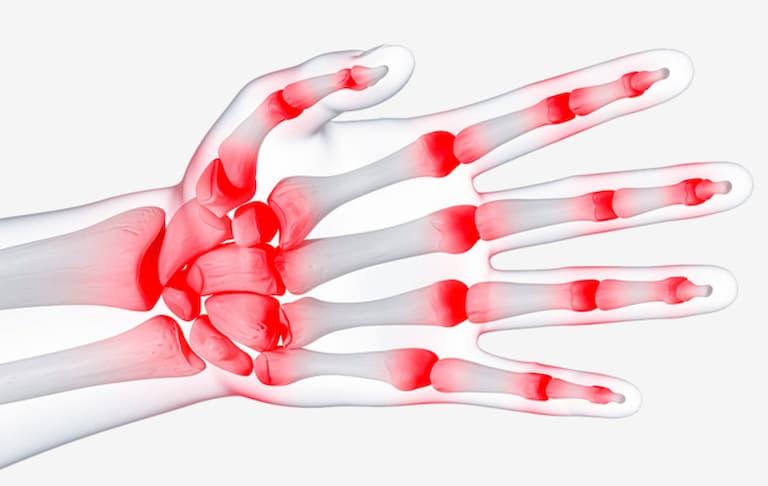 Viêm xương khớp có thể gây ra tình trạng sưng đau khớp tay