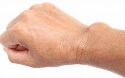 Viêm bao hoạt dịch khớp cổ tay: Hình ảnh, triệu chứng và cách điều trị