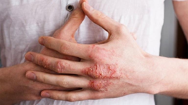 Viêm da cơ địa là nguyên nhân gây nên tình trạng bội nhiễm, hoại tử, viêm da thần kinh...