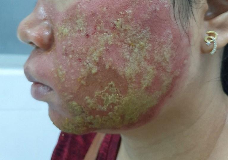 Viêm da cơ địa ở mặt có thể gây bội nhiễm, hoại tử nếu không được điều trị kịp thời