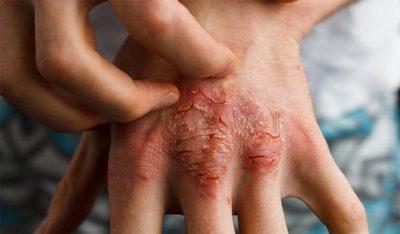 Viêm da cơ địa ở tay là gì? Nguyên nhân, dấu hiệu bệnh và cách chữa hiệu quả