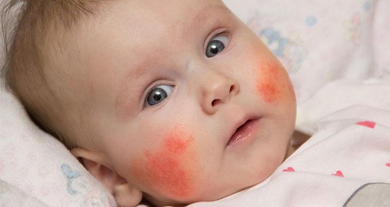 Viêm da cơ địa ở trẻ em là bệnh lý phổ biến, cần sớm điều trị dứt điểm
