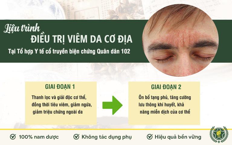 Liệu trình điều trị viêm da cơ địa Quân dân 102
