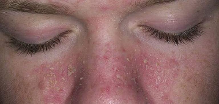 Viêm da dầu ở cánh mũi có thể lan sang một số vị trí khác trên mặt