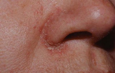 Viêm da dầu ở cánh mũi: Nguyên nhân, triệu chứng và cách chữa tận gốc an toàn