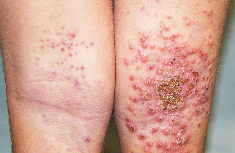 Khi bị bội nhiễm người bệnh đối mặt với nhiều biến chứng nguy hiểm có thể gây mất mạng