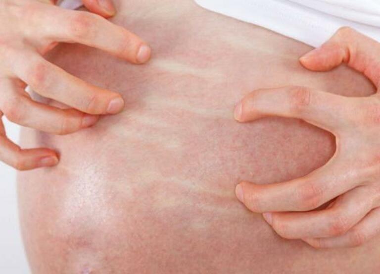 Phụ nữ mang thai có nguy cơ mắc bệnh viêm da dị ứng cao do nhiều nguyên nhân khác nhau
