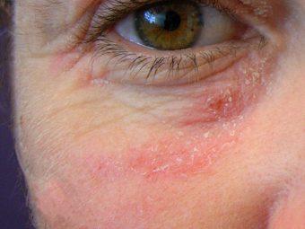 Viêm da dị ứng ở mặt: Những nguy cơ tiềm ẩn và cách điều trị tốt nhất