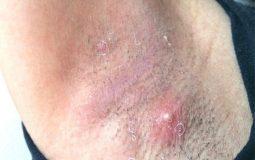 Viêm da dị ứng ở nách là gì? Hình ảnh bệnh, chẩn đoán và cách điều trị