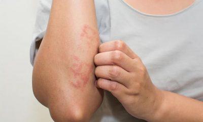 Viêm da dị ứng thời tiết là bệnh gì? Dấu hiệu nhận biết và cách điều trị