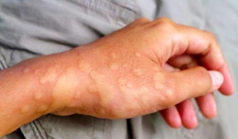 Một số trường hợp người bệnh bị nổi bì dày giống như mề đay
