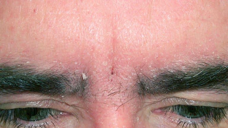 Viêm da tiết bã ở mặt thường xuất hiện ở những vị trí tiết nhiều dầu nhờn