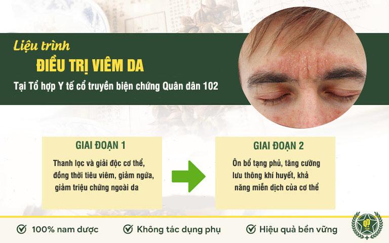 Liệu trình điều trị viêm da tại Quân dân 102